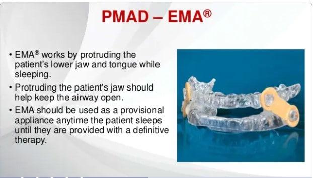 EMA Dental Device for Snoring and Sleep Apnea Treatment PMAD