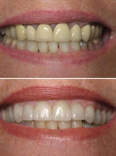 dentist paso robles
