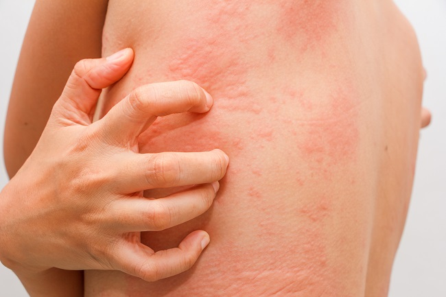What You Need to Know About Hives