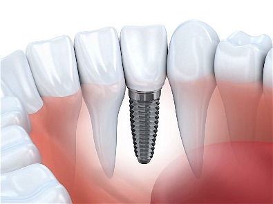 Dental Implants Improve Your Health and Life in Birmingham Alabama