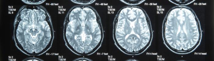 Brain Injury Workplace