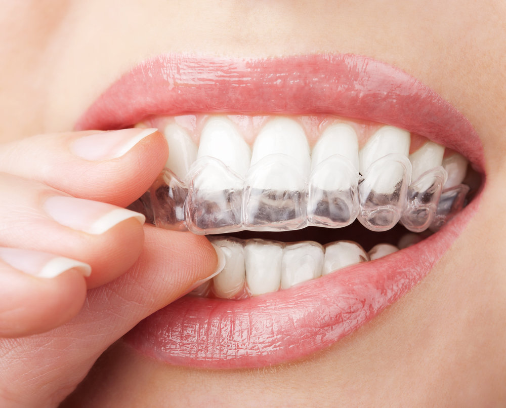 female patient placing Invisalign tray over teeth