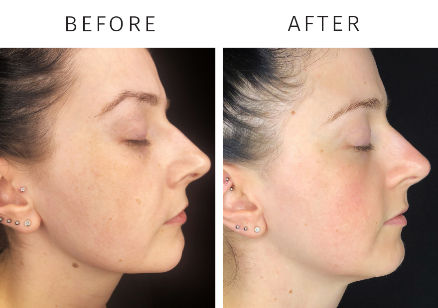 Pigmentation Relief - Before and After