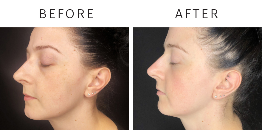 ZO Pigmentation Relief - Before and After