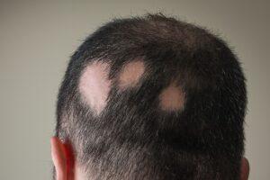 alopecia patients program