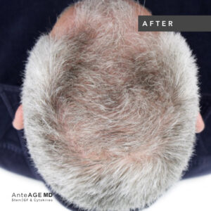 AnteAGE_MD-Hair__Before-After_New Westminster_2