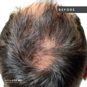 AnteAGE_MD-Hair__Before-After New Westminster 3