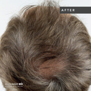 AnteAGE_MD-Hair__Before-After New Westminster 4