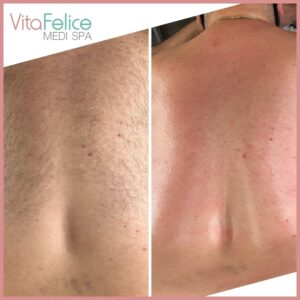Body Sugaring for male client New Westminster