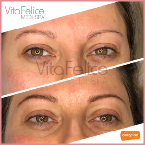 Henna-Brows-in-New-Westminster