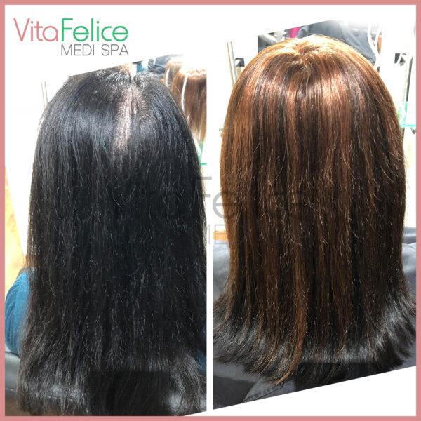 female hair loss New Westminster