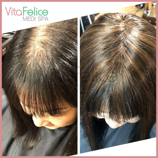 New-Westminster-Hair-Loss-System