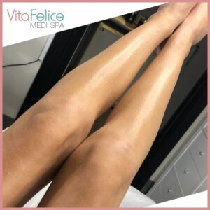 Summer ready legs after sugaring New Westminster