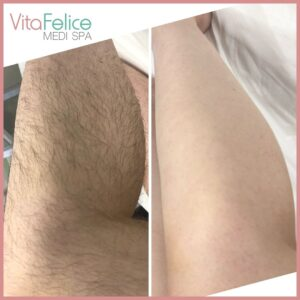 Summer ready legs before after sugaring New Westminster 2