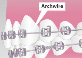 Archwire braces