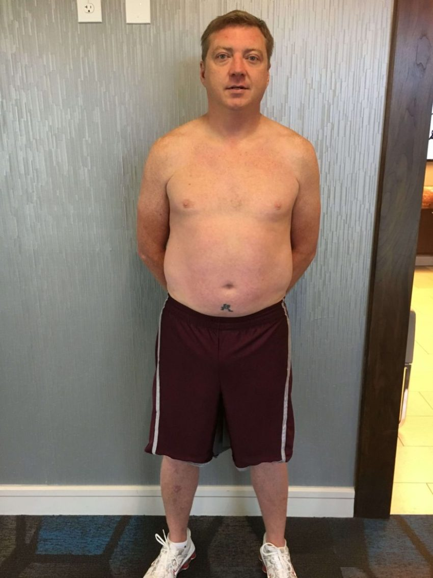 Client Bryan Reeves front before picture