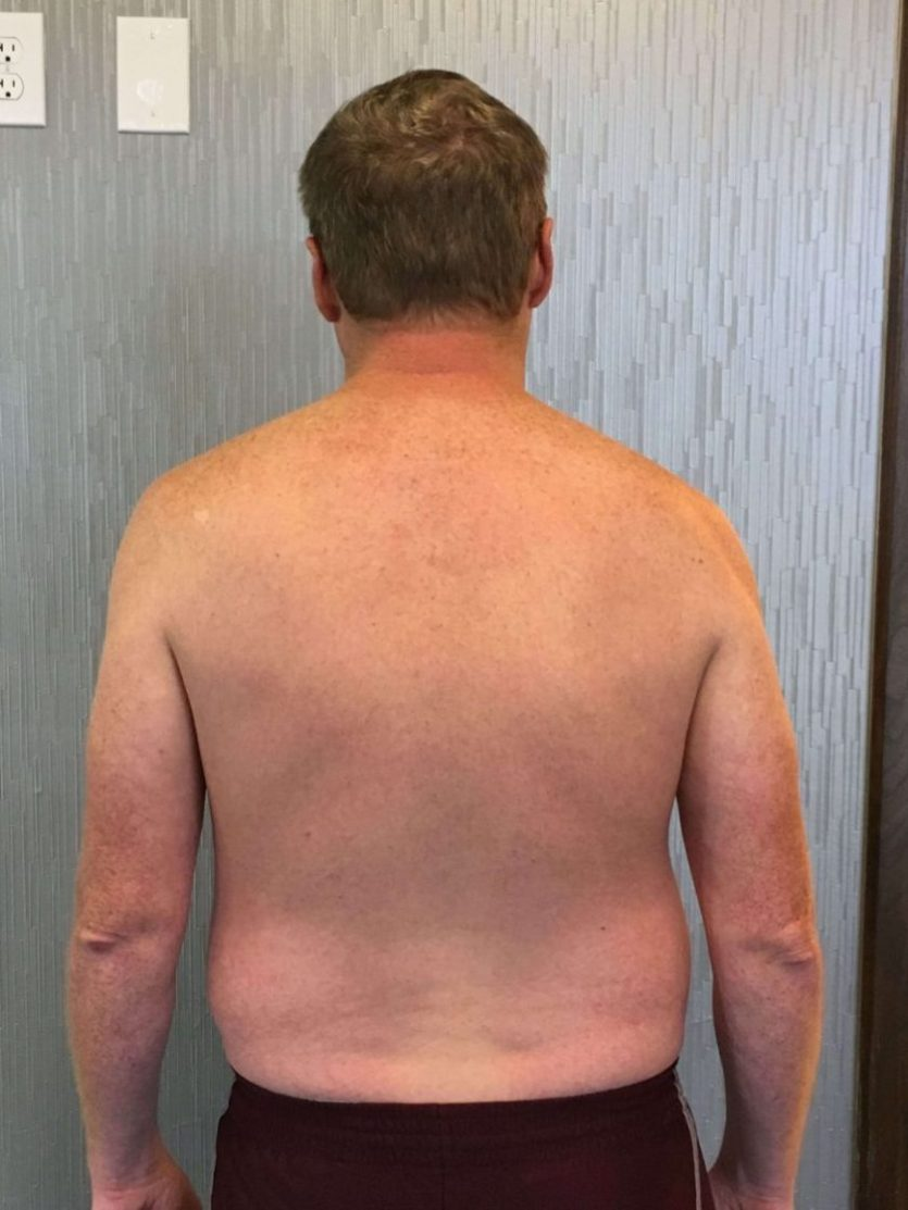 Client Bryan Reeves before picture showing his back