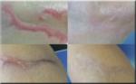 Scar Removal