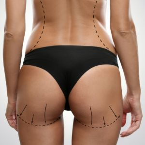 Back side of young female body with marks for fat transfer Brazilian Butt Lift