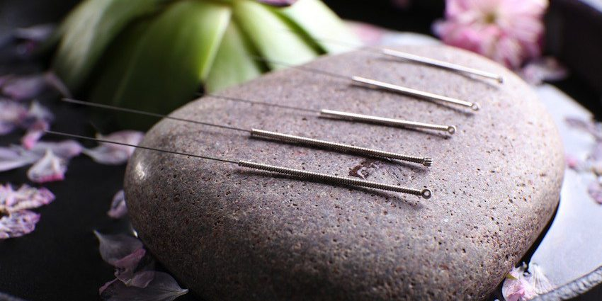 traditional Chinese acupuncture