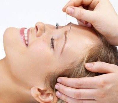 cosmetic acupuncture mississauga