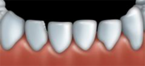 Dental bonding can be used to fix teeth that are chipped.