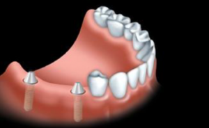 With an implant bridge, dental implants are surgically placed into the jawbone.