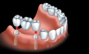 A custom-made bridge is anchored to the dental implants.