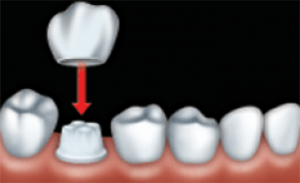 To make room for the crown, your dentist files down the tooth to be restored.