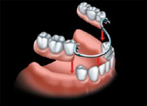 dentures_0011-300x217