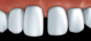 Veneers can be used to fill gaps.