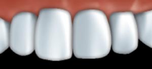Veneers look very much like natural teeth.