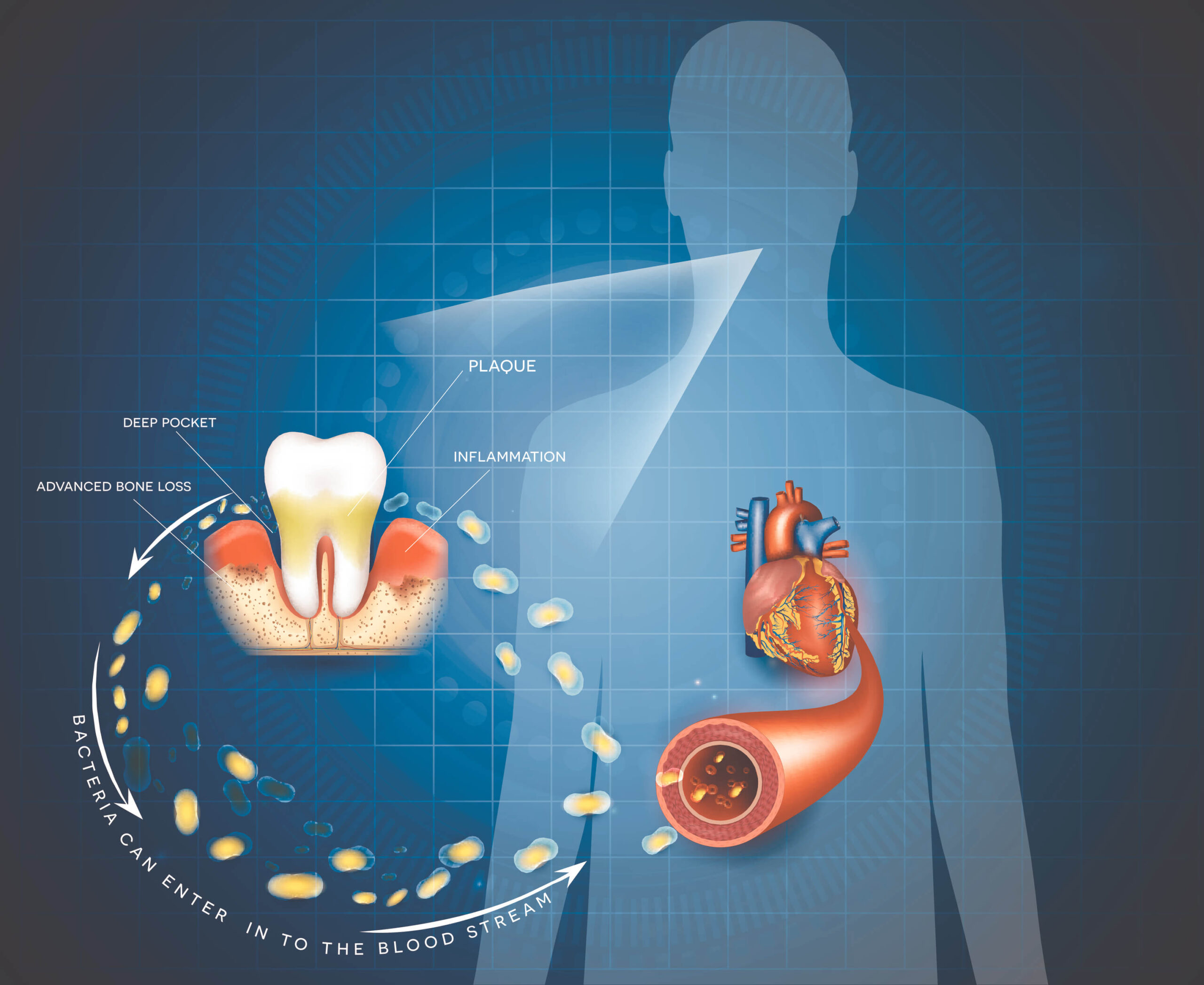 Caring Family Dentistry Irvine Blog - The Heart of the Matter: Oral disease and Cardiovascular Health