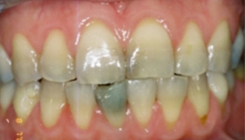 Caring Family Dentistry in Irvine - Nolan Jangaard DDS - Smile Gallery