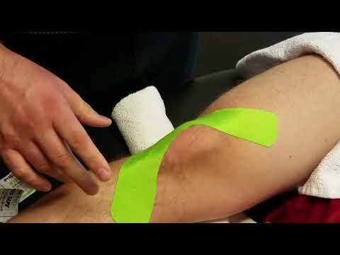 Knee Stability K Taping
