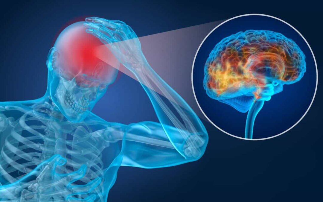 What is a Concussion and What to do if you have one