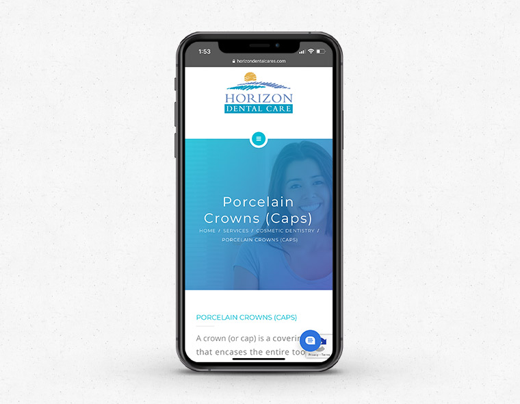 Horizon Dental Website - Mobile Device