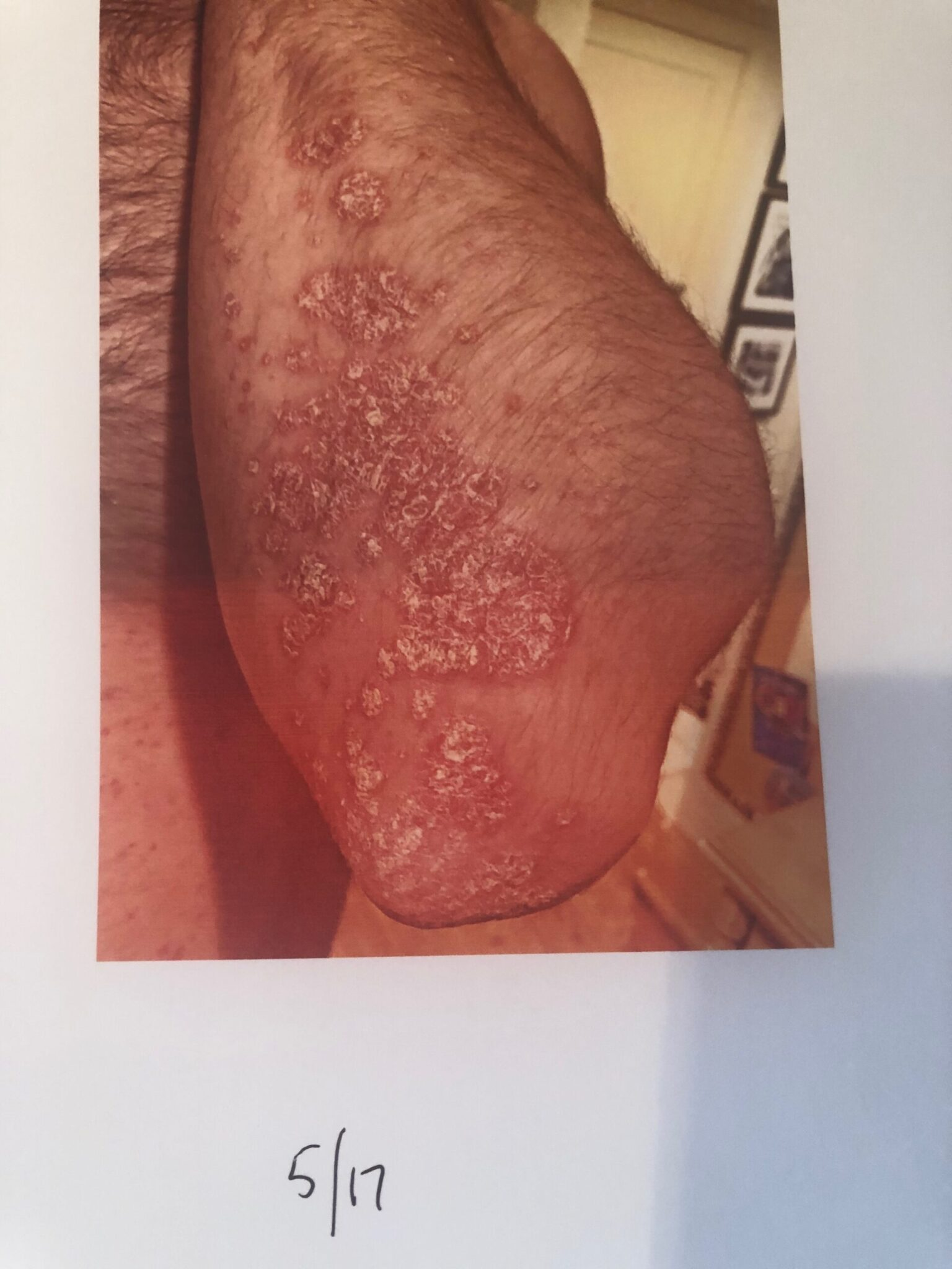 Eczema Improved