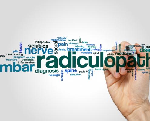 Radiculopathy