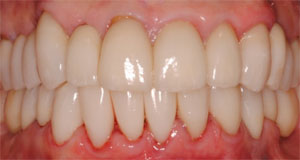 Implants-Crown-Bridge-dental-reconstruction-grand-rapids