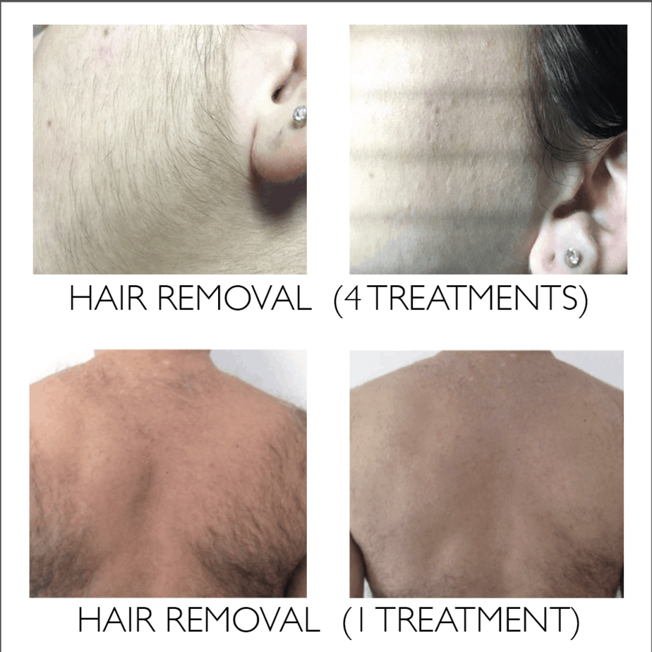 50% off, IPL, PhotoFacial, Hair Removal, Photo Facial, LaVida Massage and Skincare, Skin Care, Advanced Skincare, Facials, Hydrafacial, IPL, PhotoFacial, LED Therapy, Celluma, Membership, Benefit Savings Plan
