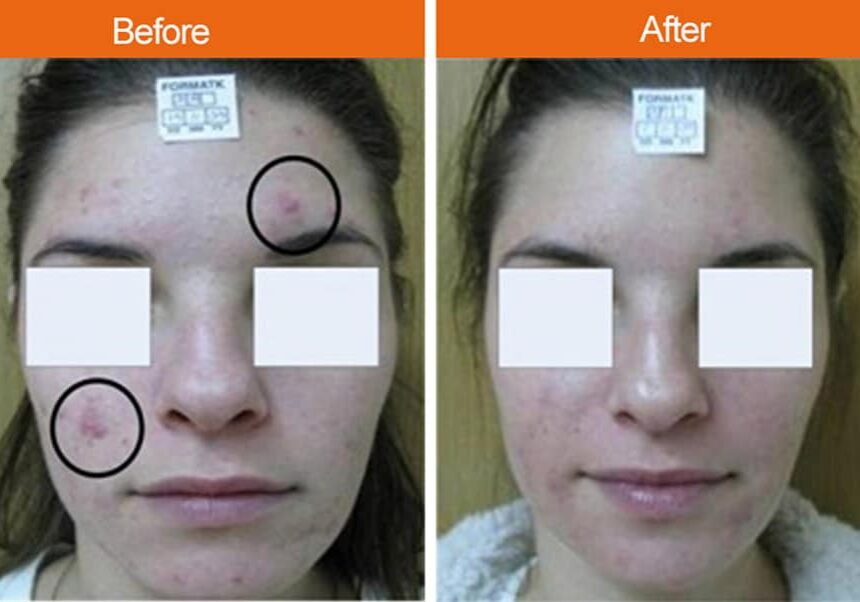 Before-After Acne