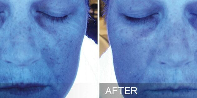 before-after-hydration