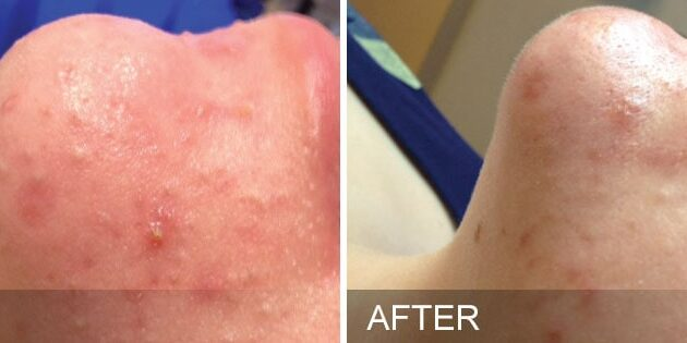 before-after-oily-congested