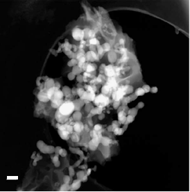 Batteries for electric vehicles, electric cars: STEM Image of anode courtesy of F.M. Hassan.