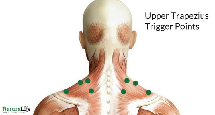 upper trapezius trigger point diagram
