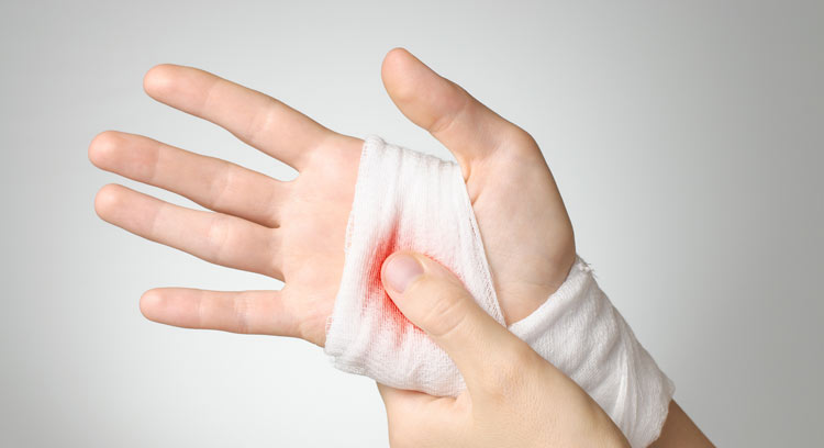 guide to inflammation with wounded hand