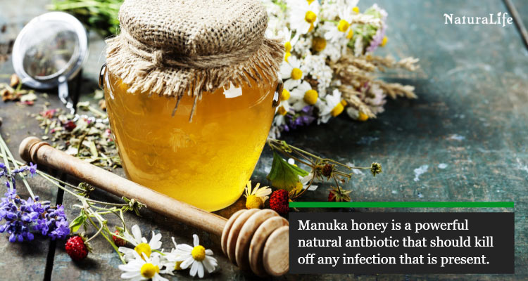 disinfect chafed skin with manuka honey