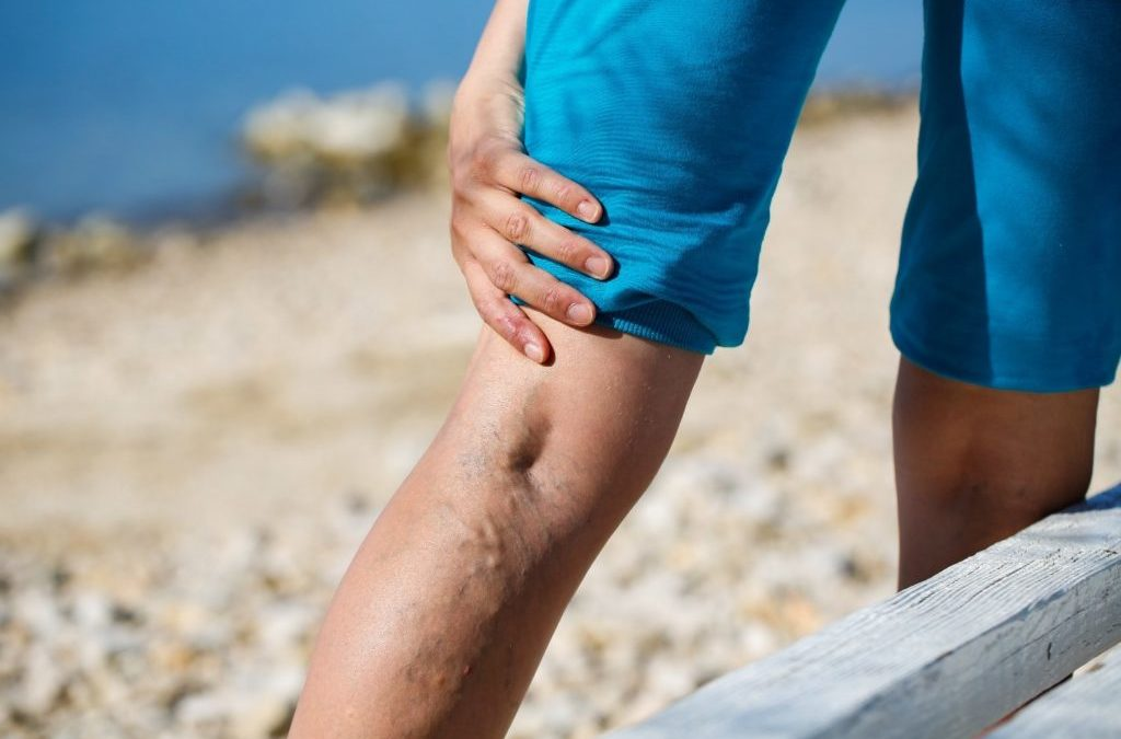 Spotlight on Venous Insufficiency: What It Is and How It's Treated