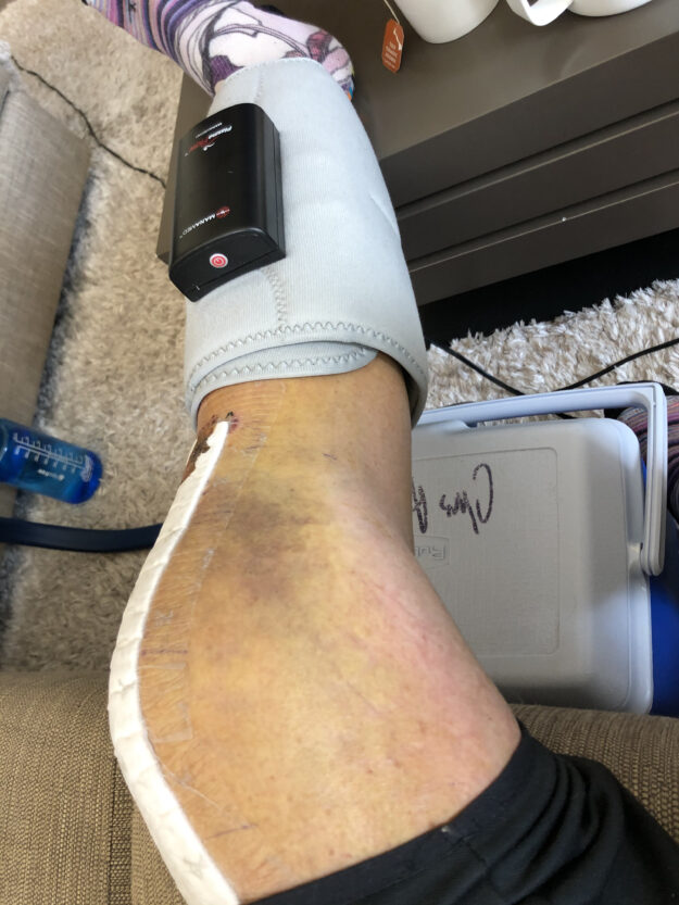 Ice, Elevation, and Knee Therapy at Home